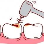 299만원 선납 치아 교정치료, 정상진료 중단된다면 환급은?